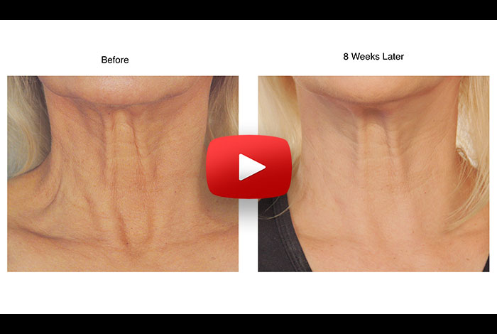 Lift + Firm  Sagging Skin Without Surgery?