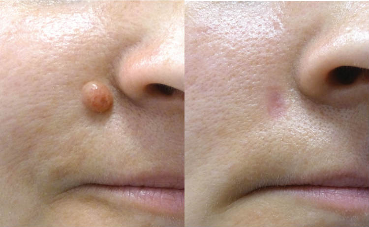 Mole Removal Cream – SkinCell Pro Reviews, Skin Tag and Mole Removal